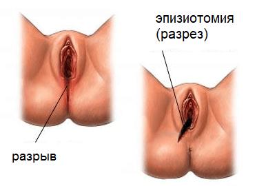 Разрыв Влагалища Порно Онлайн